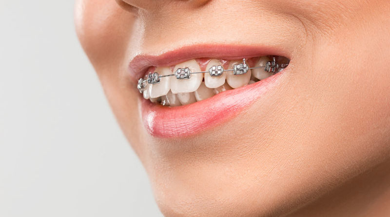 Mitos aparelho nos dentes
